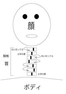 頚椎ずれ図