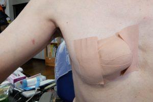 術後の止血処理