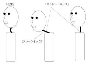 ストレートネック図