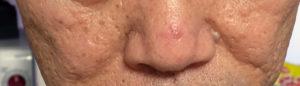 鼻のおでき